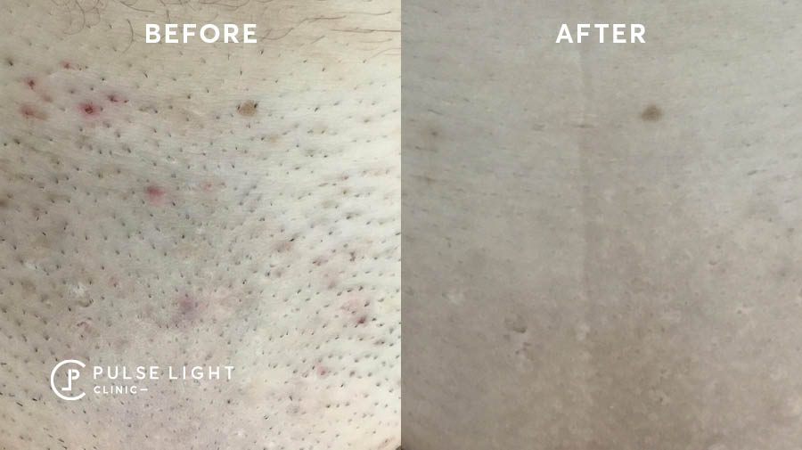 before and after laser ingrown hair removal bikini