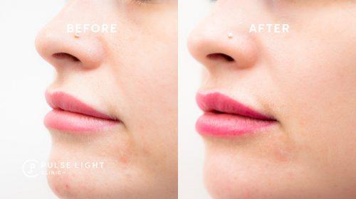 Pulse Light Clinic dermal fillers lip line