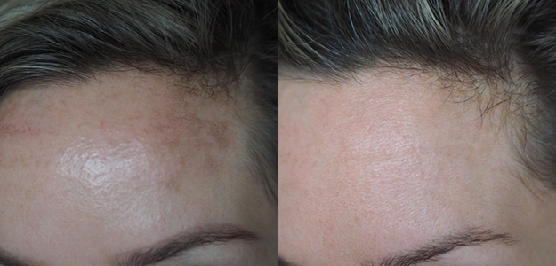 PicoSure before and after results