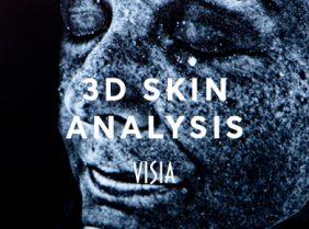 3D skin analysis visia london