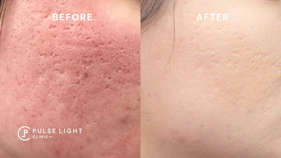 acne scar profound RF before and after