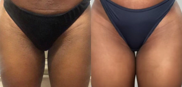 Before and After ingrown hair removal with laser hair removal on bikini
