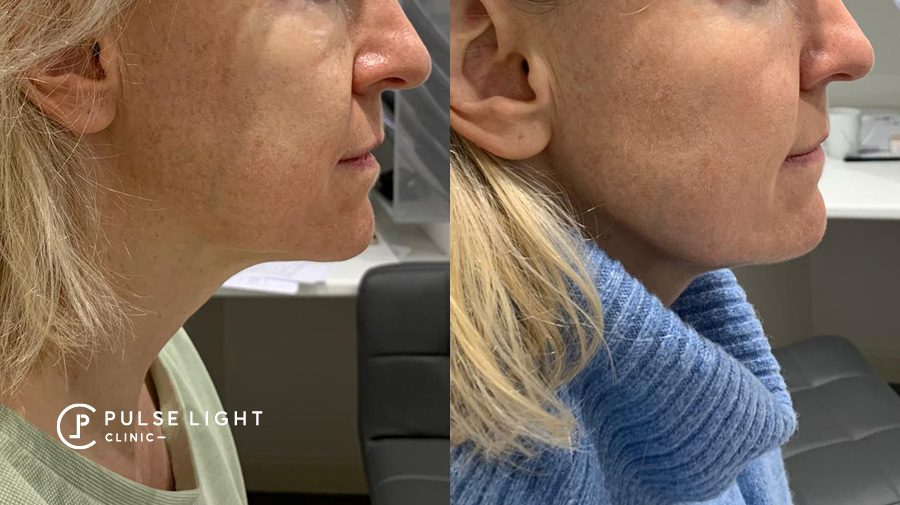 Profhilo clinic london before and after