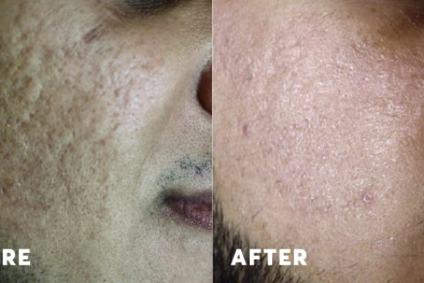 Before and after laser treatment for acne scars