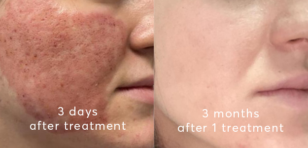 A client 3 days after Co2 treatment and 3 months after co2 treatment for acne scar removal