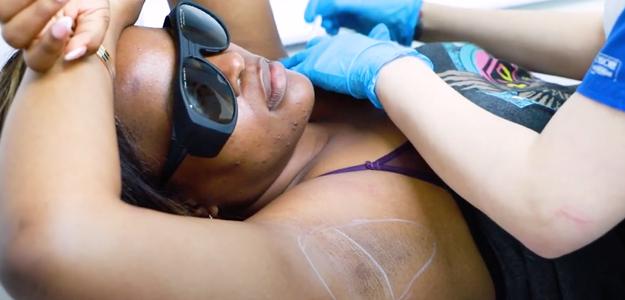 Tolani Shoneye Having Laser Hair Removal