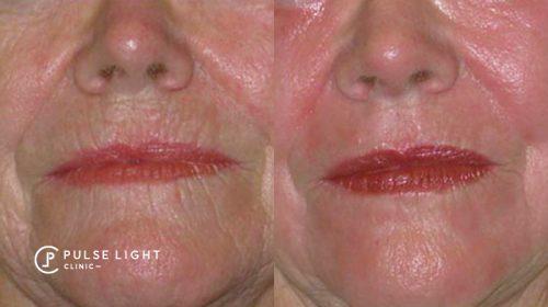 resurfacing around mouth laser