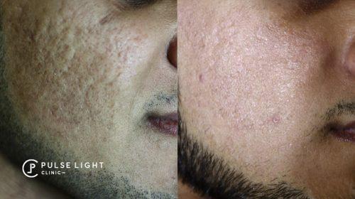 co2 laser acne scar removal