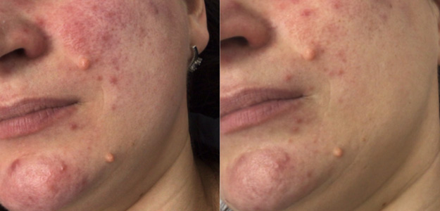Rosacea Treatment Results