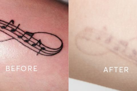 Tattoo Removal Results
