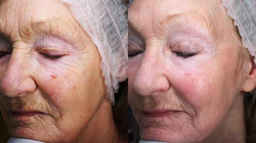 CO2 Treatment face anti-ageing