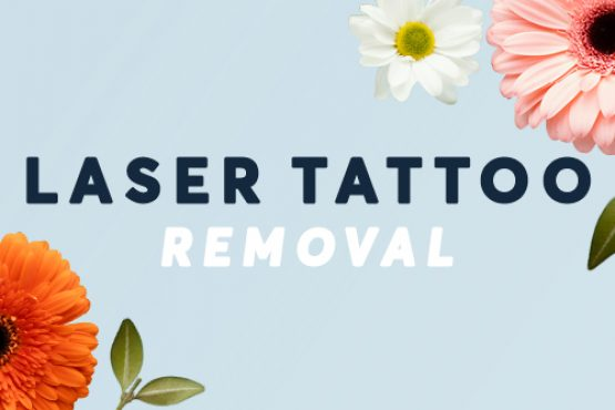 Laser Tattoo Removal Spring Offer