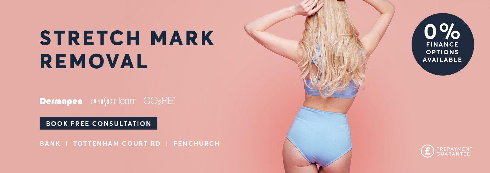 Stretch Mark treatment London