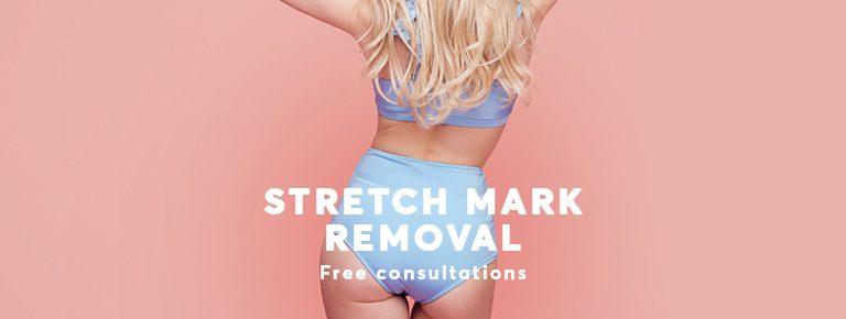 Stretch mark treatment