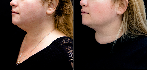profound before and after results chin blog post