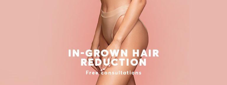 Treat ingrown hair with laser