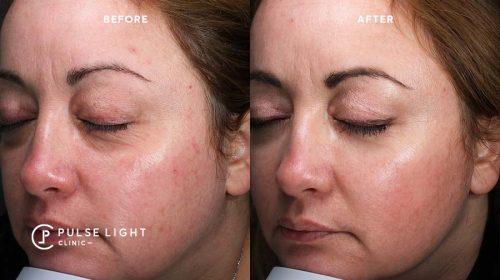 Tear trough correction dermal fillers
