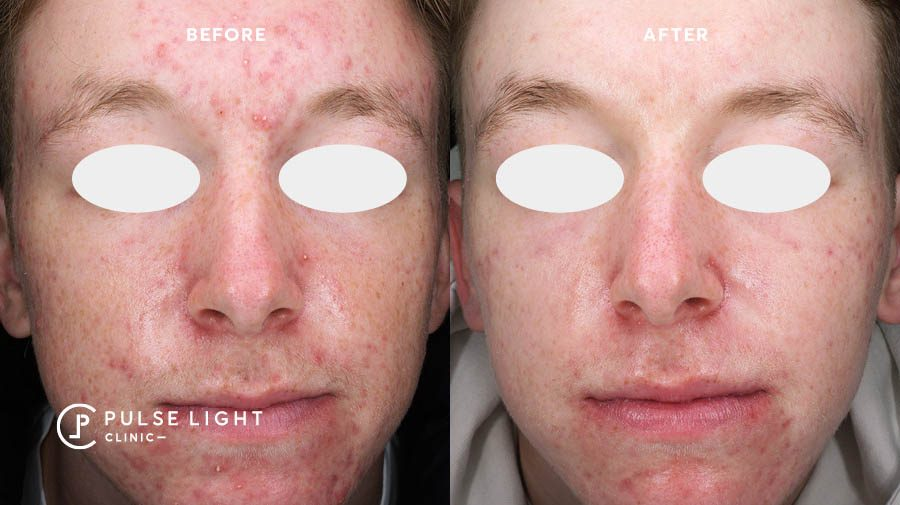 Live Acne treatment LED Phototherapy