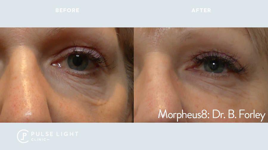 Morpheus8 eyes