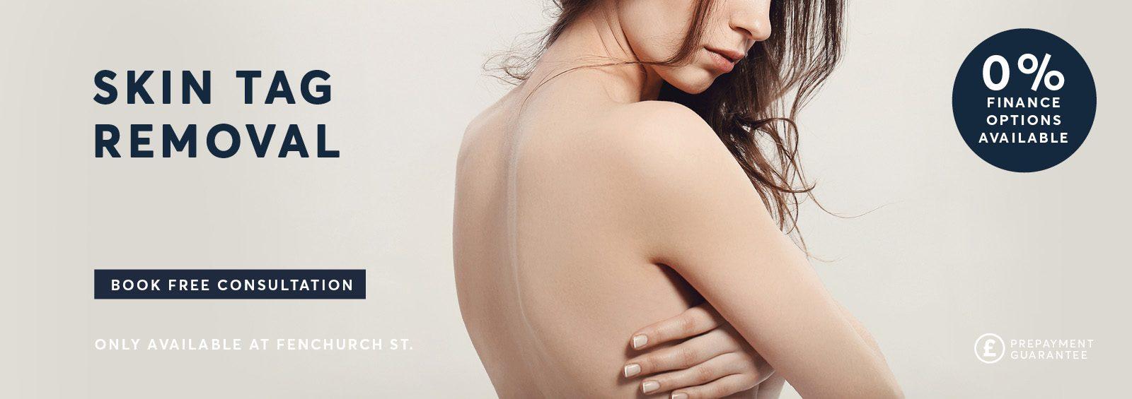 Skin Tag removal London