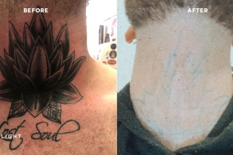tattoo removal before and after on the neck