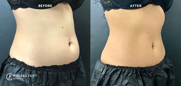 Before and after CoolSculpting results for Lower abdomen