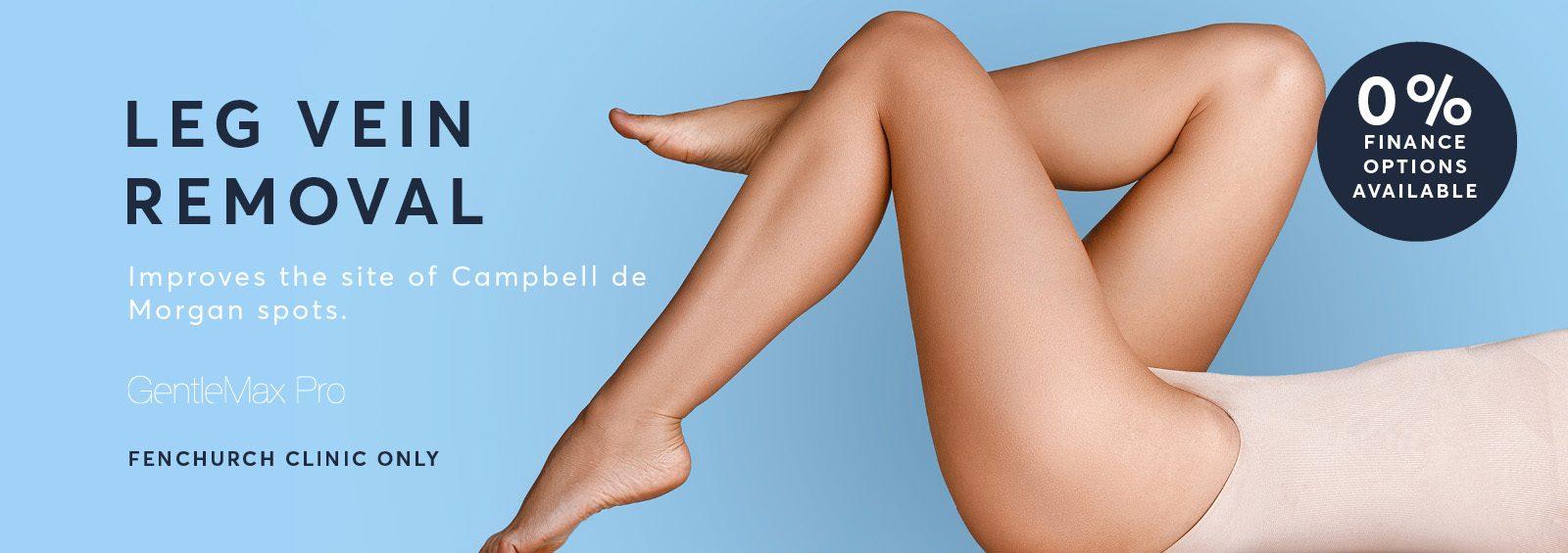 Leg vein treatment