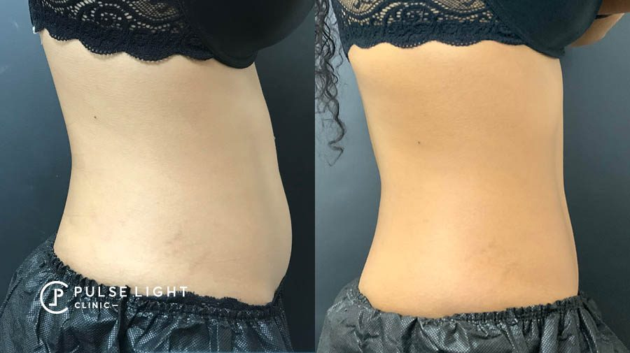 coolsculpting before and after lower belly