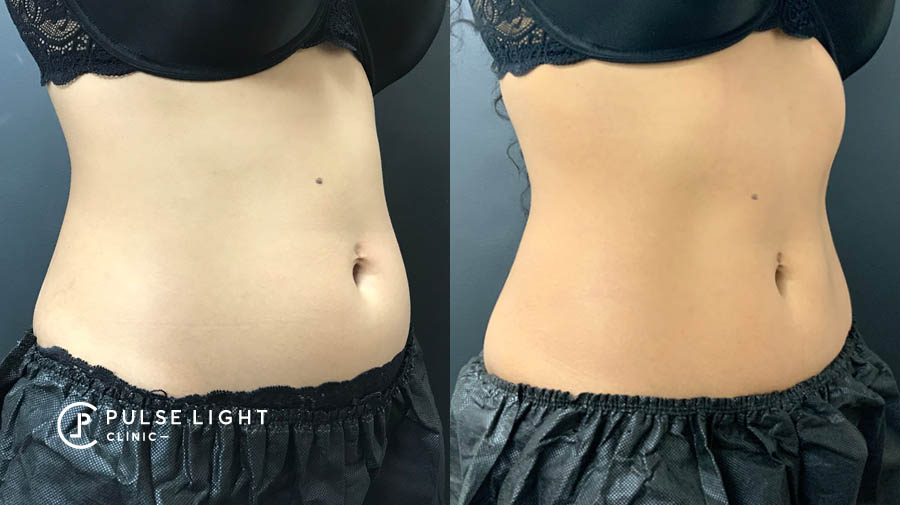 Fat Freezing belly before and after