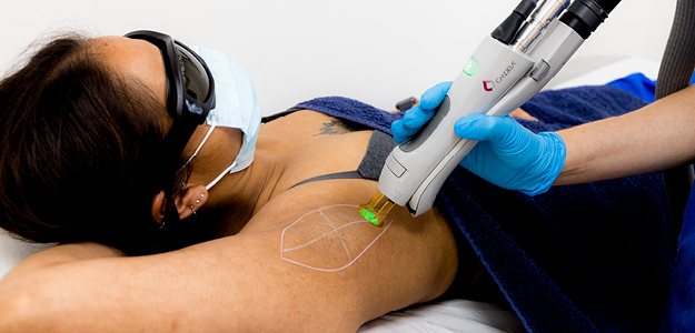 laser hair removal treatment on indian skin