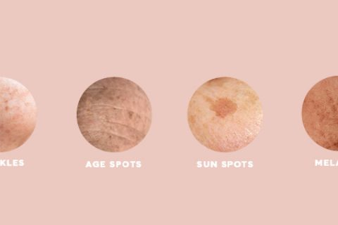 Different types of pigmentation graphic