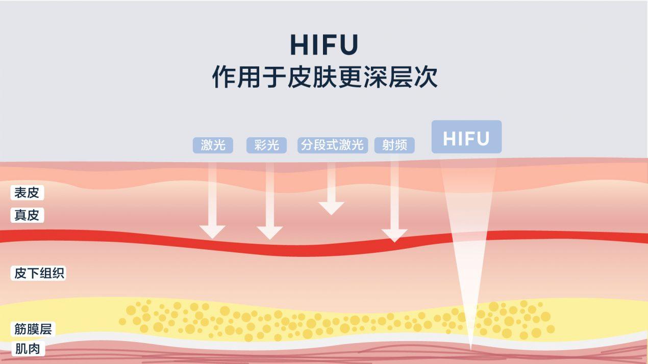 伦敦 HIFU 超声刀