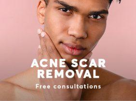 Acne Scar treatment October 21