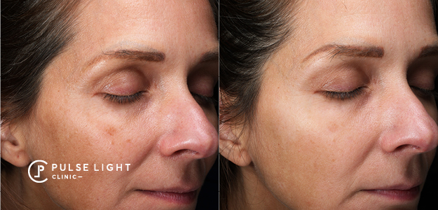pigmentation before and after results
