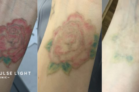 rose tattoo before and after laser tattoo removal results