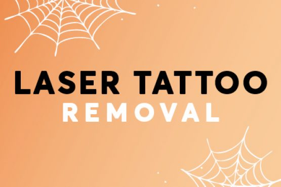 Halloween Laser Tattoo removal offer