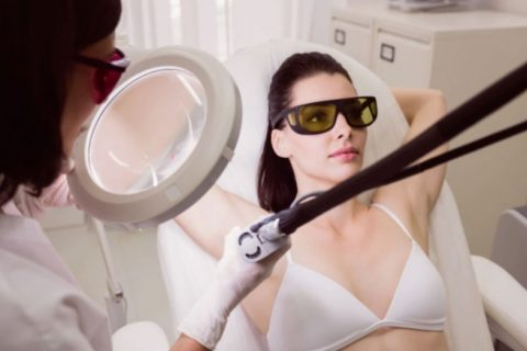 Laser hair removal side affects