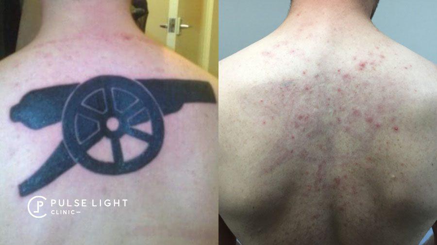 Laser Tattoo Removal Black Ink back
