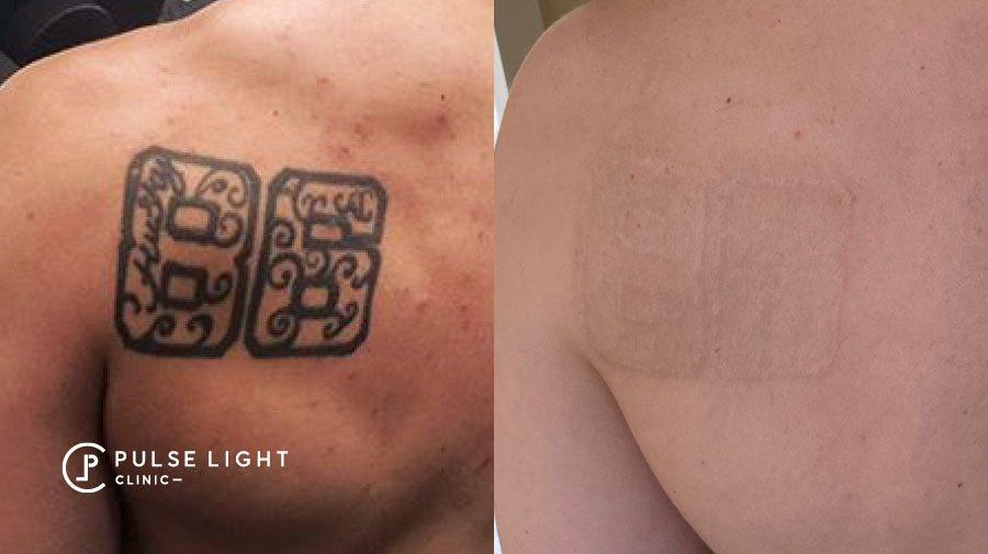 Laser Tattoo Removal London 86 black ink